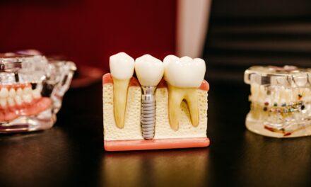 Dental Complaints Service Review 2020